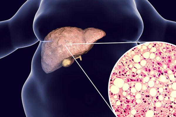 Yağlı Karaciğer Hastalığı